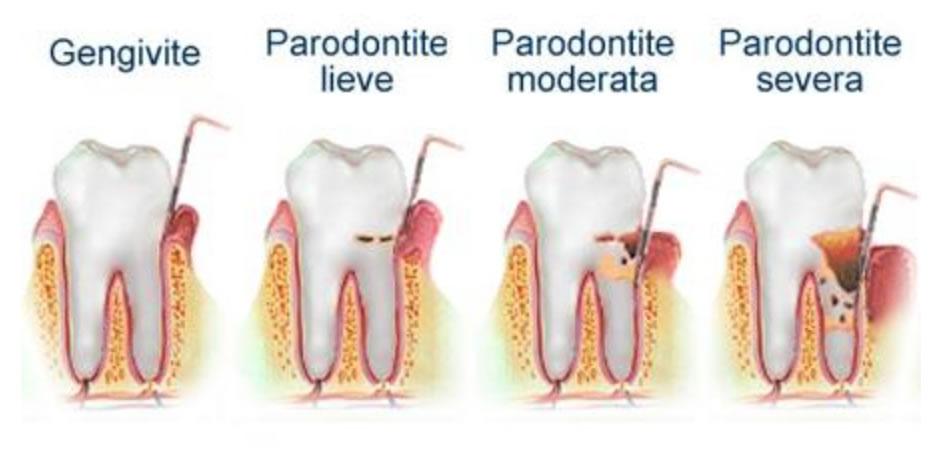 malattia-parodontale-torino-08